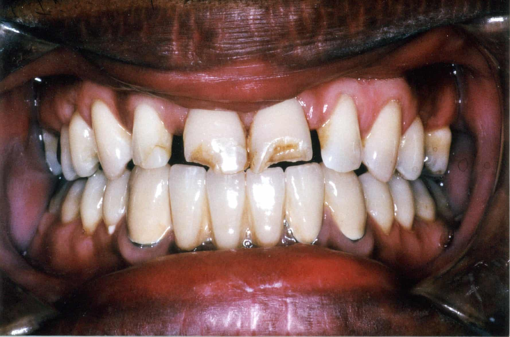 Dental before and after photo - Granger