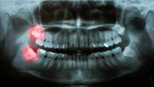 wisdom teeth on x-ray